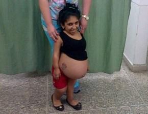 La zuliana María Quintero podría estar entre las dos mujeres más pequeñas del mundo en tener unbebé