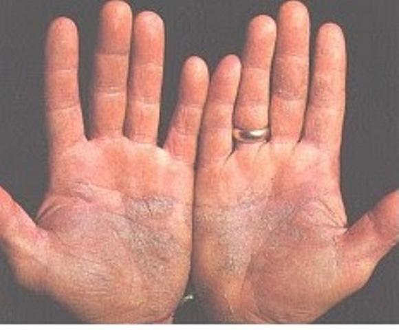 Hlorgeksidina biglyukonat el hongo de los pie