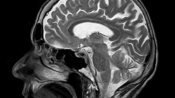 Cerebro-G