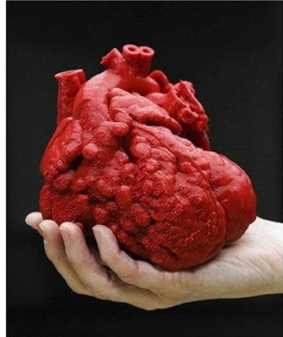 IMPLANTES 3D Corazón musculoso