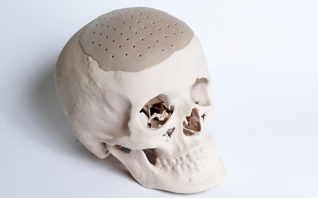 IMPLANTES 3D craneo completo