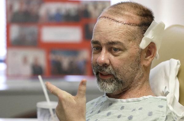 IMPLANTES 3D craneo hombre operado
