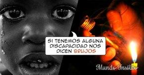 Africa: NIÑOS discapacitados son acusados de BRUJOS y torturados ATERRADORAMENTE!