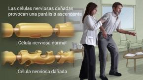 Desarrollan en Japón un tratamiento pionero para el síndromeGuillain-Barré