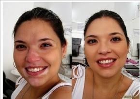 El Vitiligo, causas de su aparición. Como curarlo