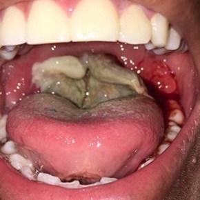 Difteria en Portuguesa y 14 estados de Venezuela. Conoce laDifteria.