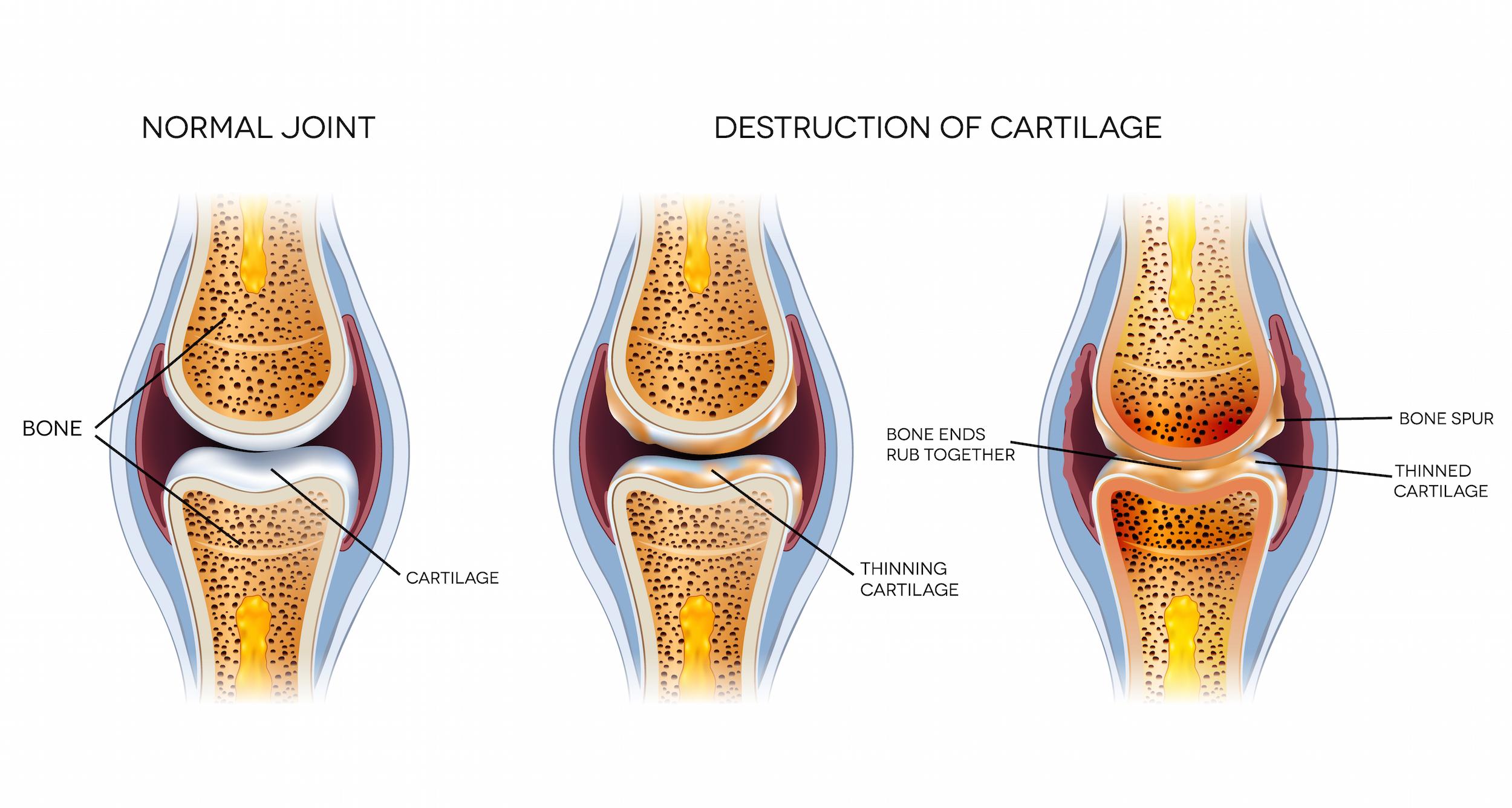 El Dr. Pedro Serrano Vidal innovó en México la cura de las artrosis